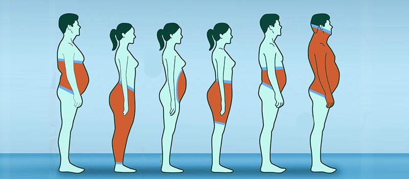 انواع چاقی
